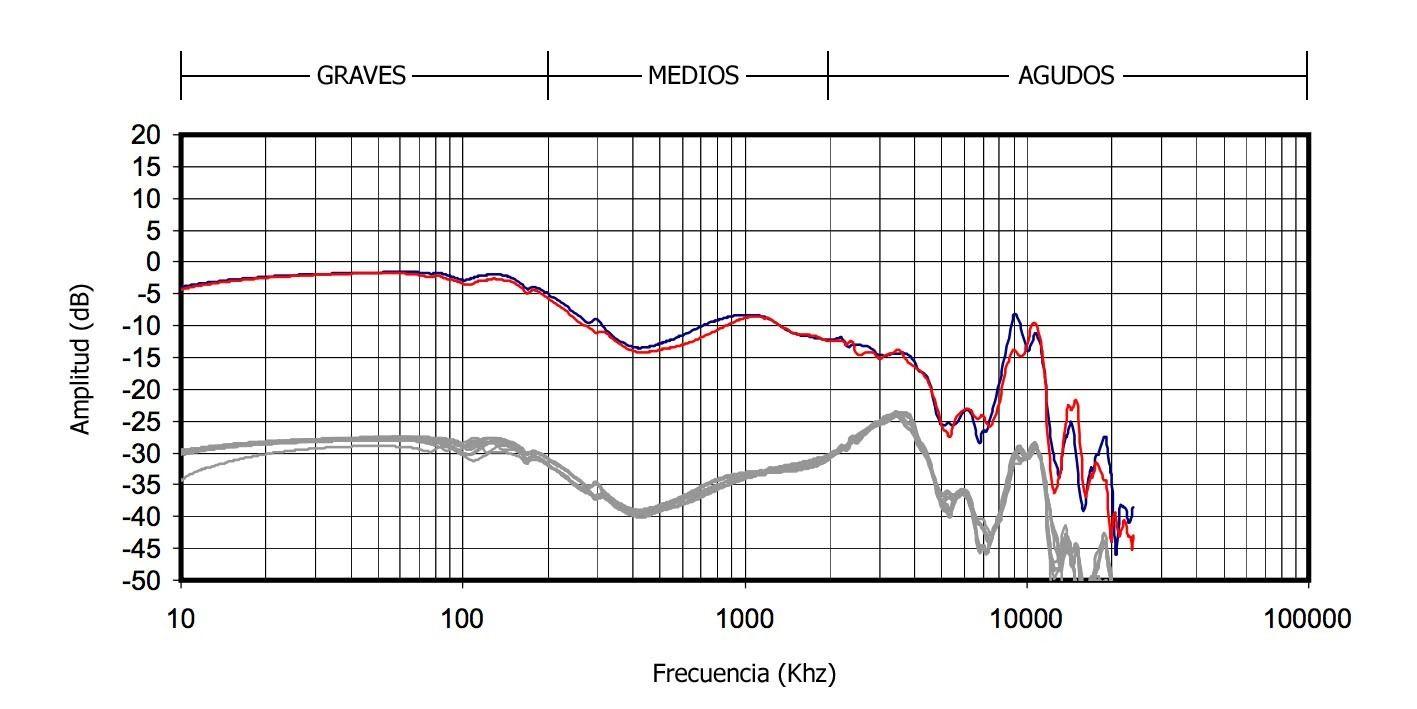 Tipos de auriculares con sonido basshead